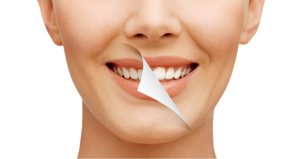 Teeth Whitening 3 At Home Tips To Make Your Teeth Shine